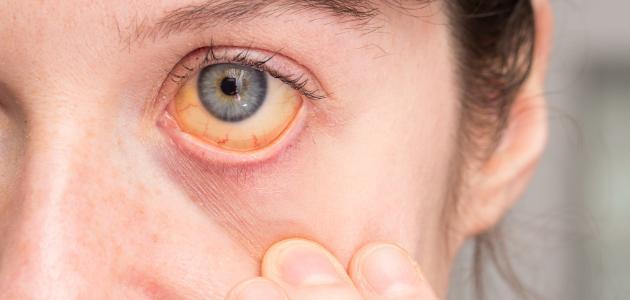 اعراض فيروس سي على الوجه