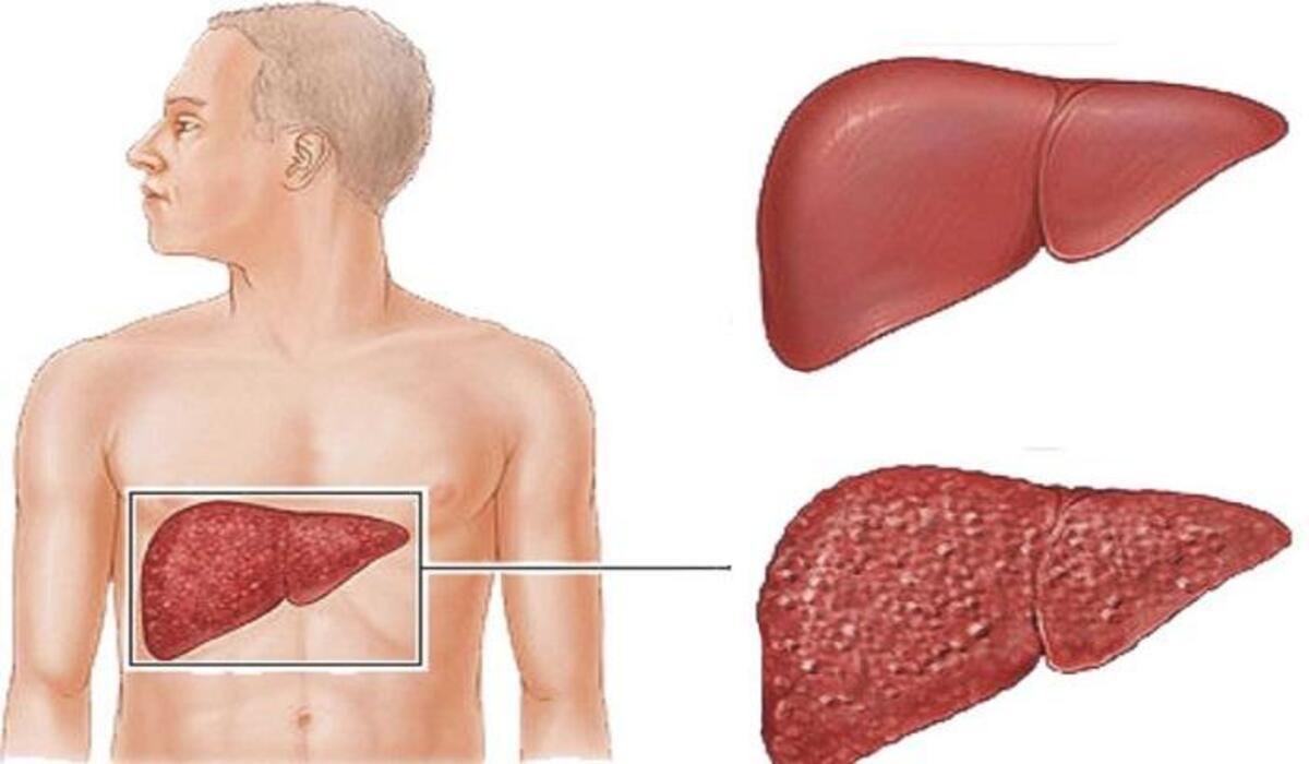 أعراض التهاب الكبد الوبائي