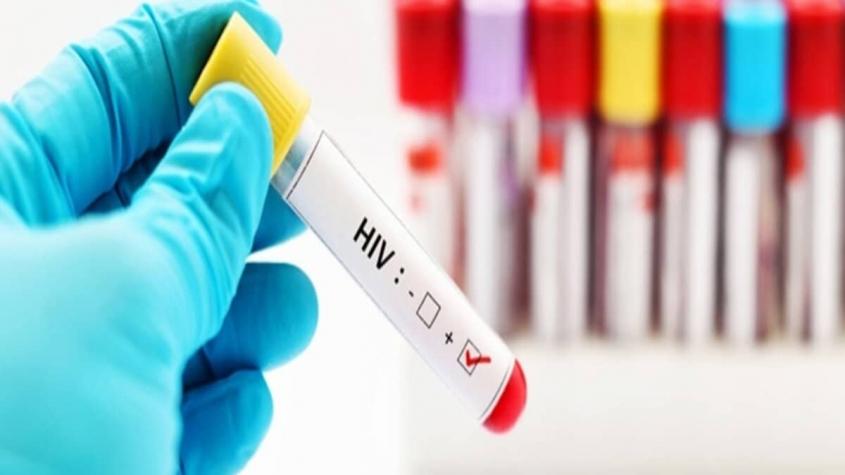 اثار مرض الايدز