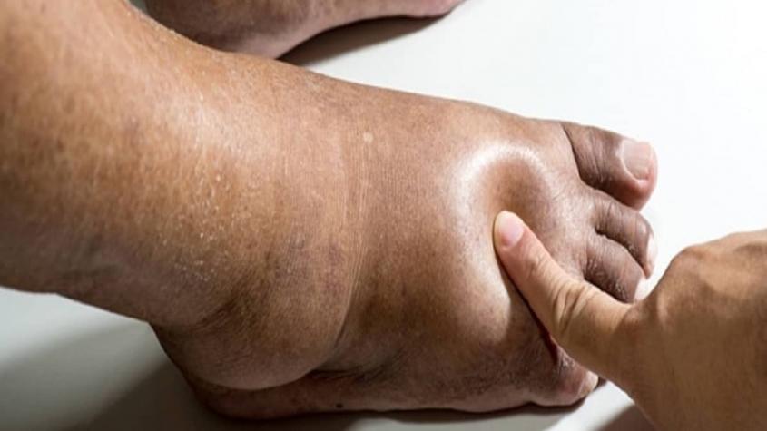 اسباب انتفاخ الجسم لمرضى السكري