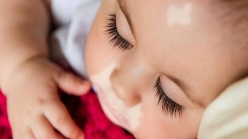 اسباب مرض البهاق عند الاطفال