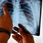 اعراض tuberculose