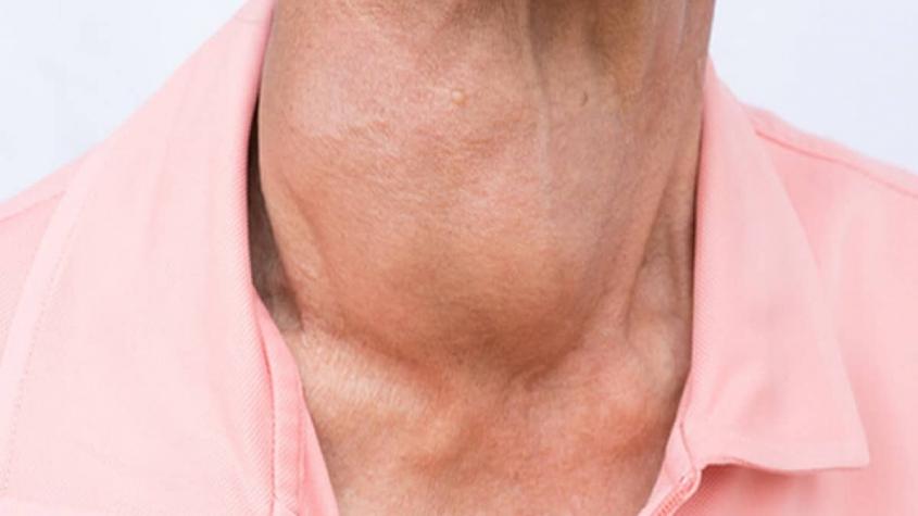 أسباب مرض السلعة الدرقية