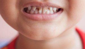كيفية التخلص من تسوس الاسنان