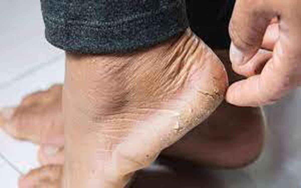 كيفية التخلص من تشقق القدمين بسهولة ويسر