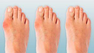 اسباب الم اصابع القدم