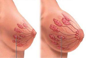 تجربتي مع التهاب الثدي