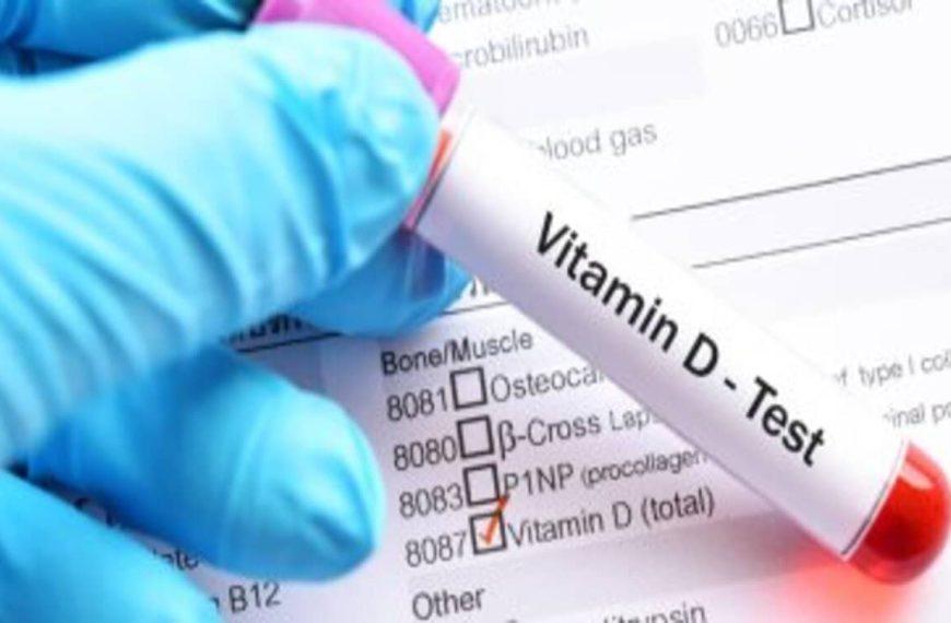 سعر تحليل فيتامين د في معامل التحاليل الطبية